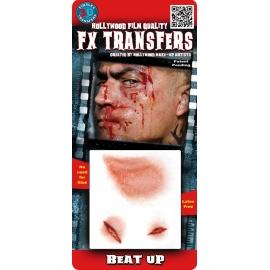 Transfert 3D - Blessures