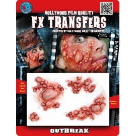 Transfert 3D - Pustules
